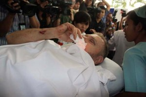 Innocent victim: David Potter, a senior executive of PT Freeport Indonesia, is transferred to a hospital in Jakarta. Voices of the bombing victims are rarely heard in the media. JP/Nurhayati